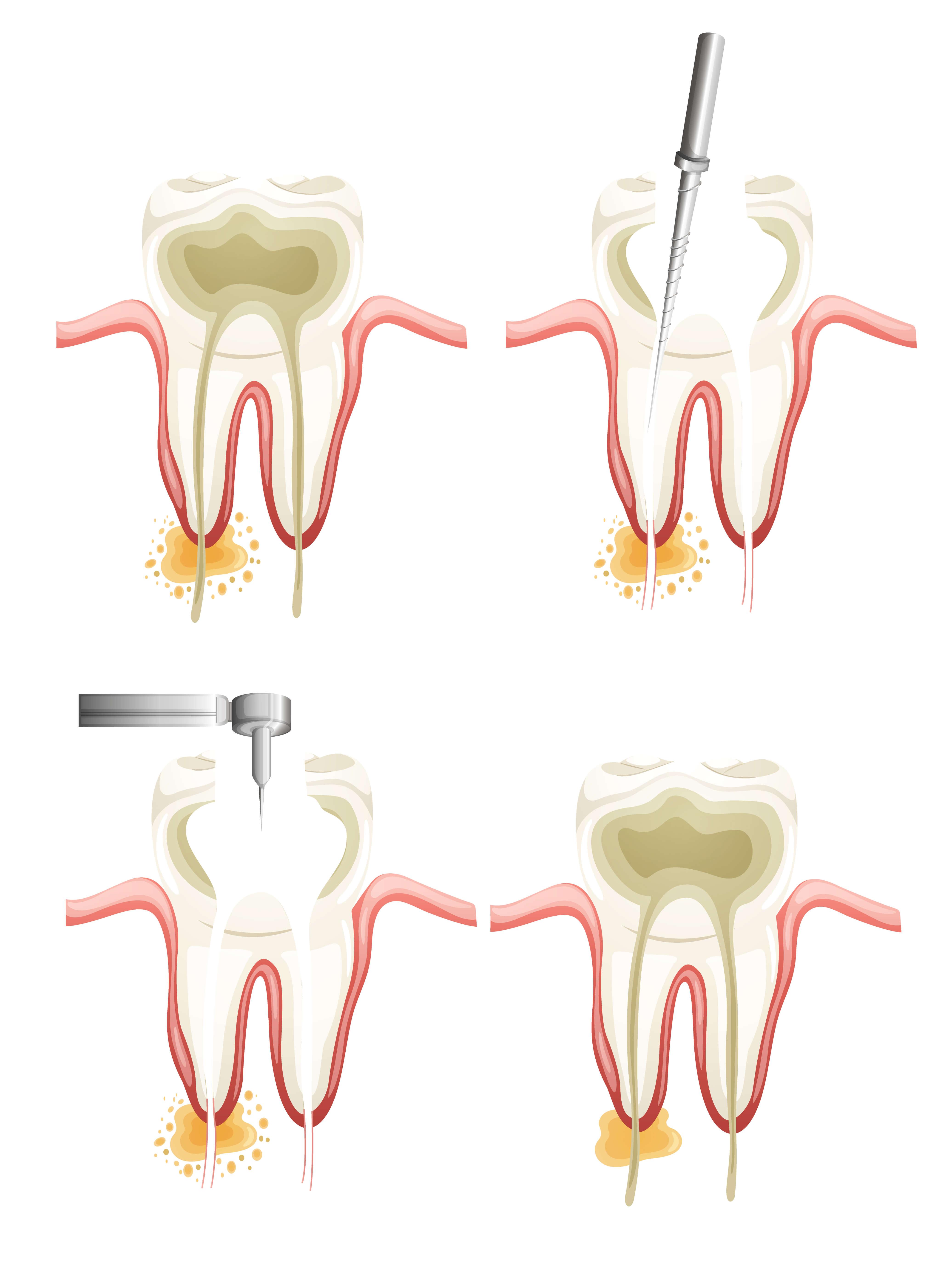 column1-image3